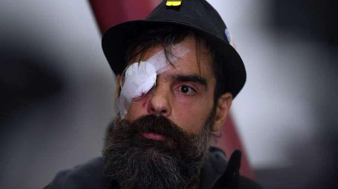 Comment les violences policières sont devenues le principal ciment des « gilets jaunes »
