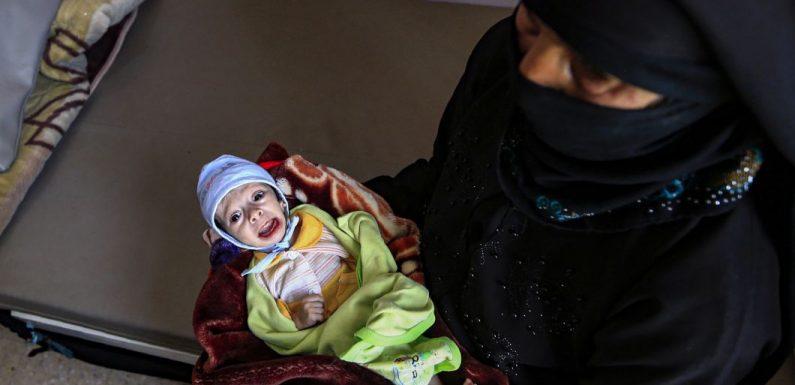 Les enfants yéménites souffriront de la faim pendant vingt ans